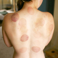 Bruising from cupping